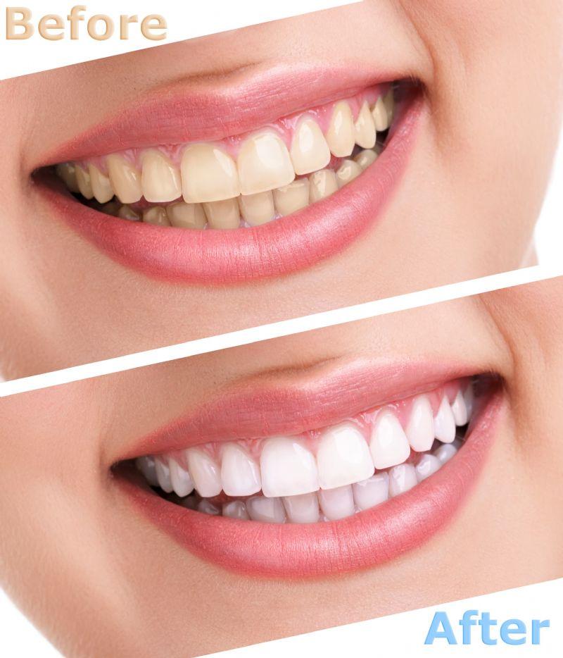 ฟอกสีฟันขาว เห็นผล ปลอดภัย ราคาถูก นนทบุรี ราชพฤกษ์ บางใหญ่